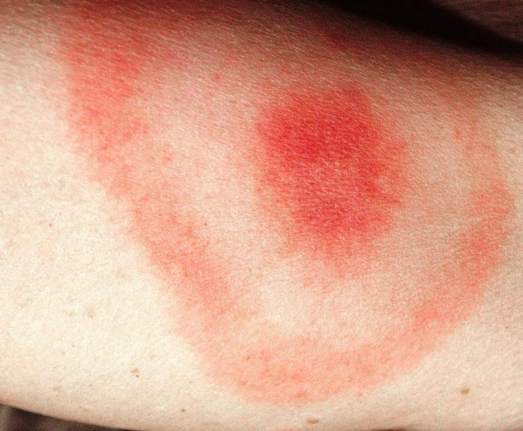 borrelia värk i benen